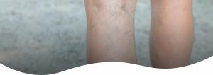 Behandling av åreknuter og sprengte blodkar i knehasen