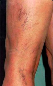 Sprengte blodkar i beina