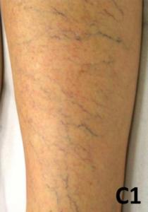 Blodsprengninger på bena